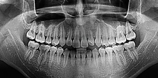 Общий снимок зубов - отропантомограмма