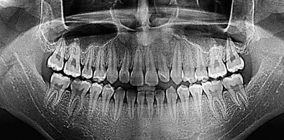 Панорамный снимок зубов: как делают и для чего? - Инфозубы