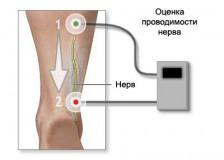 Виды и показания к электромиографии