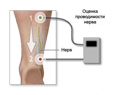 Проводимость нерва