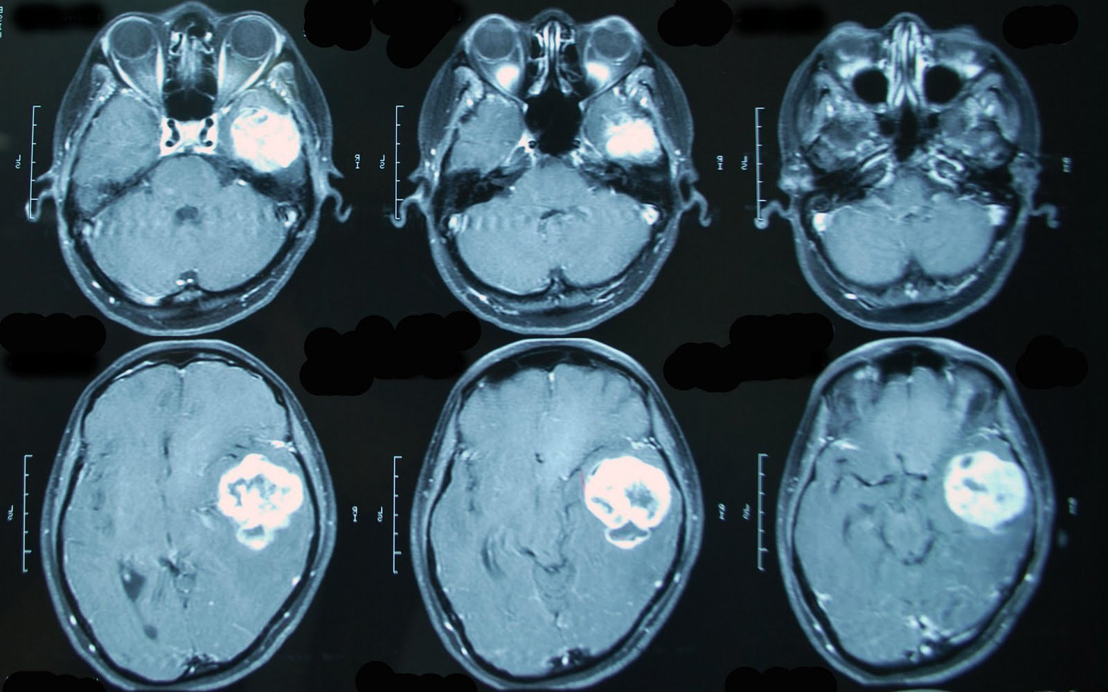 Опухоль головного мозга на снимке МРТ