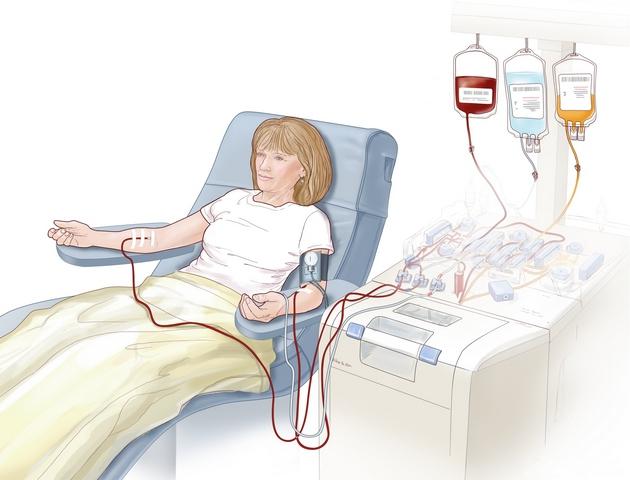 Процедура очистки крови