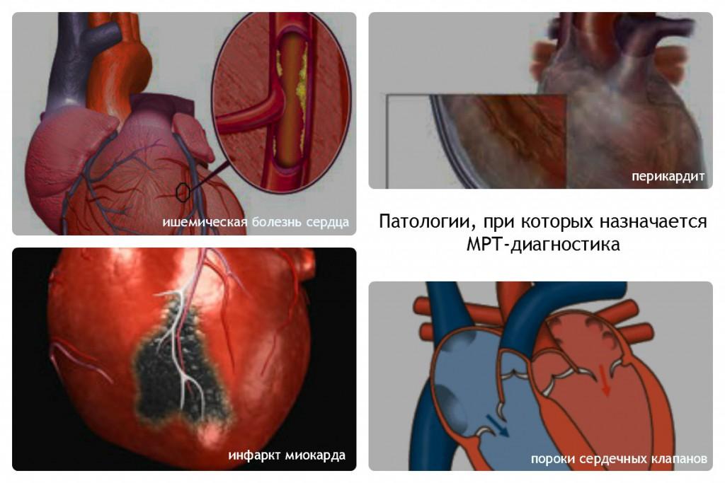 Патологии сердечной мышцы