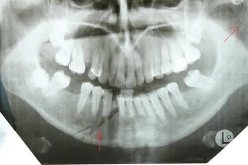 Перелом челюсти на рентгене