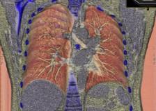 Информативная диагностика на КТ грудной клетки