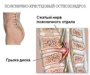 Заболевание остеохондрозом