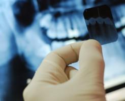 Вредно ли делать рентген зуба при беременности?