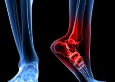 Виды патологий на рентгене стопы