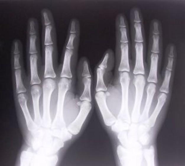 Рентгеновский снимок рук