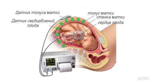 Тонус матки при беременности как лежать