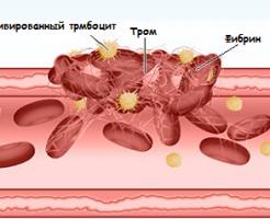 Специфический анализ на свертываемость крови