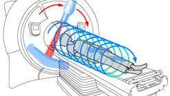 Чем отличается мультиспиральная компьютерная томография от обычной КТ?