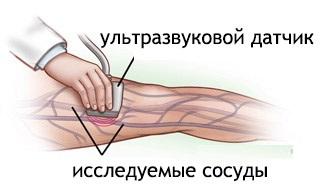 УЗИ сосудов ноги