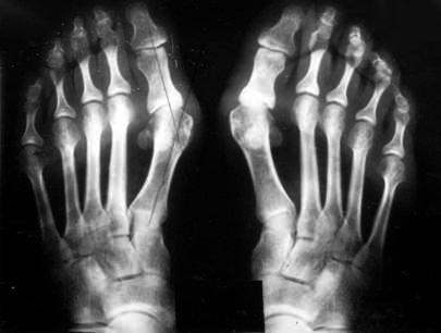 Вальгусная деформация на рентгеновском снимке