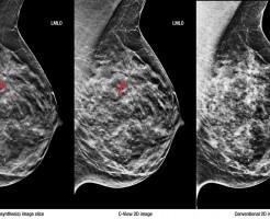 Подробнее о маммографии молочных желез