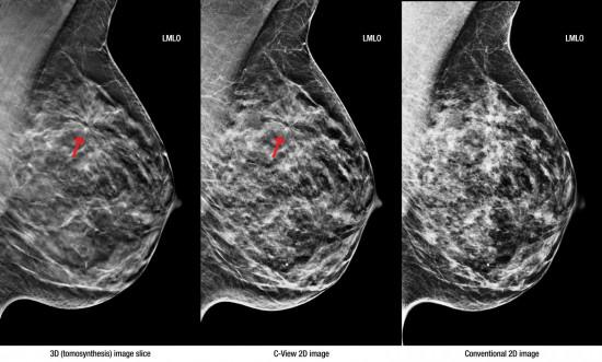 Снимки с маммографии