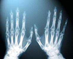 Безопасно ли часто делать рентген?