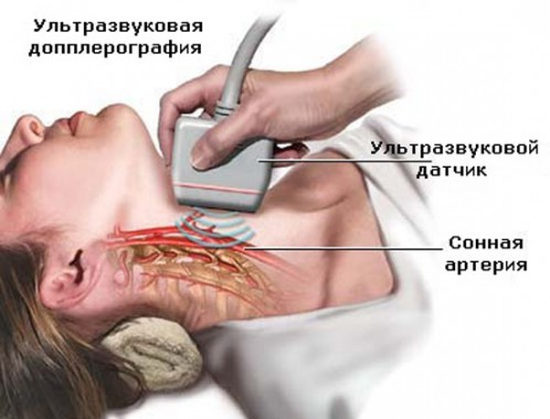 Транскраниальное дуплексное сканирование артерий