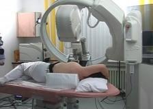 Исследование работы млечных протоков на процедуре дуктографии