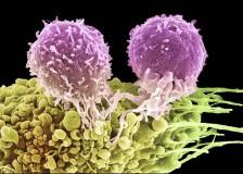 Основные показатели лимфолейкоза в анализах крови