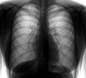 Заболевание пневмонией на флюорографии