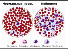 Патологические изменения в анализе крови при лейкозе