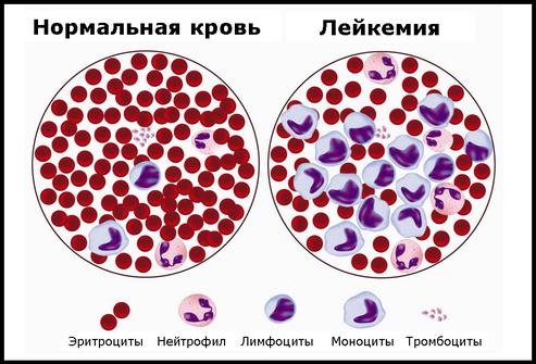 Пропорции крови при лейкемии