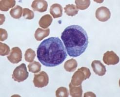 На что указывают моноциты в анализе крови?