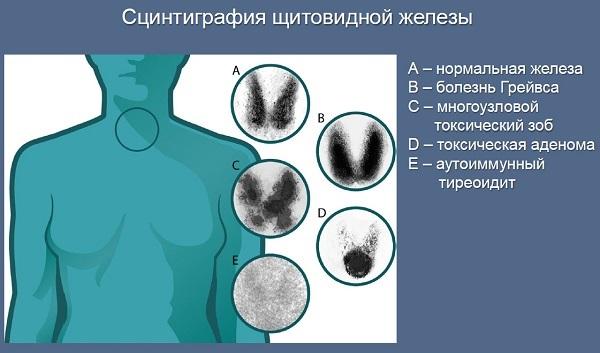 Щитовидная железа при заболеваниях на сцинтиграфии