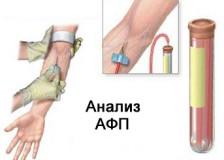 Повышенная концентрация АФП в анализе крови