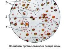 Повышенный уровень лейкоцитов в анализах мочи