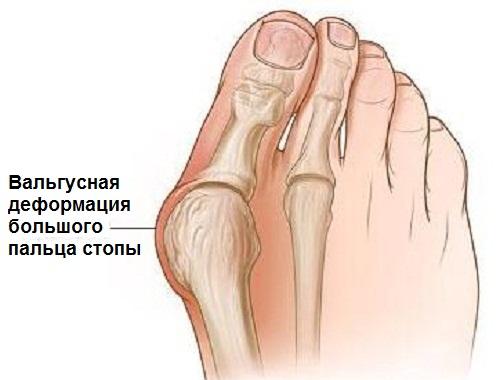 Вальгусная деформация пальца стопы