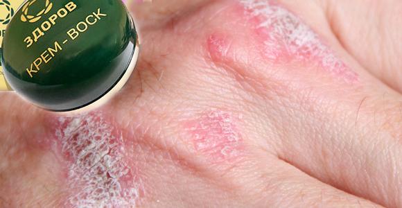 Крем-воск от кожных заболеваний
