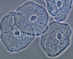Значения плоского эпителия в мазке на цитологию