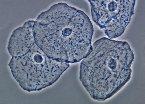 Эпителий в сперме