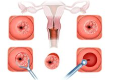 Процедура биопсии шейки матки при эрозии