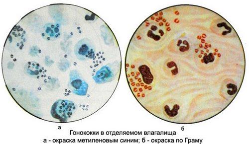 Определение бактерий