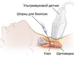 Диагностика при помощи биопсии щитовидной железы