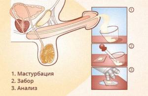 podgotovka-k-obsledovaniyu-spermogrammi