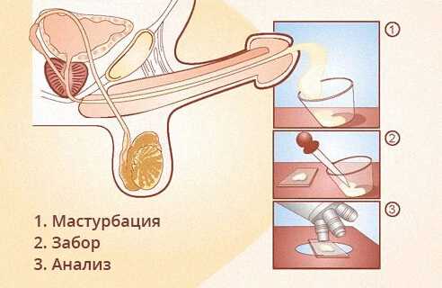 Подготовка к сдаче спермы