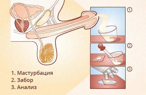 zabor-spermi-u-muzhikov