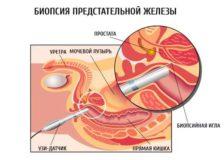 Проведение процедуры биопсии предстательной железы