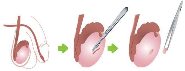 Открытая биопсия
