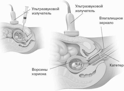 Трансцервикальный метод
