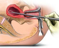 Что показывает биопсия эндометрия?