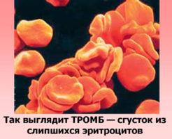 Причины и лечение тромбоцитоза