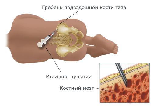 Пункция из кости таза