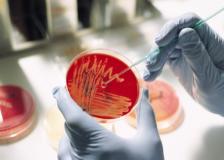 О бациллярной флоре в мазке — что это такое?