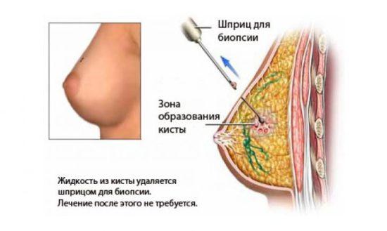 Проведение процедуры