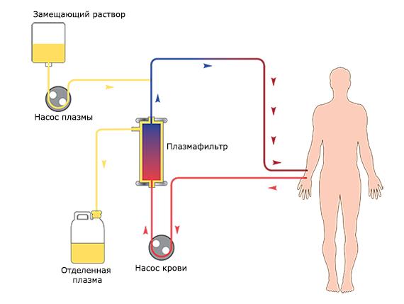 Процедрура плазмофереза